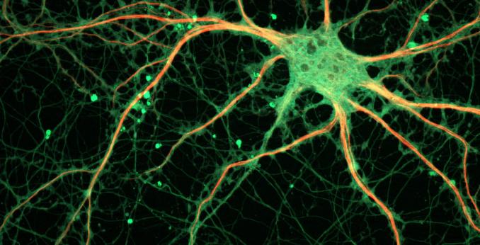 Соматический отдел нервной системы человека